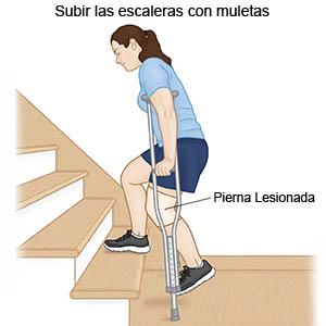 subir escaleras-edigar