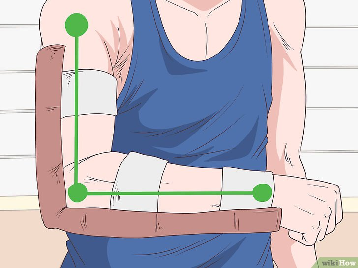 v4-728px-Splint-a-Humerus-Fracture-Step-4-Version-4