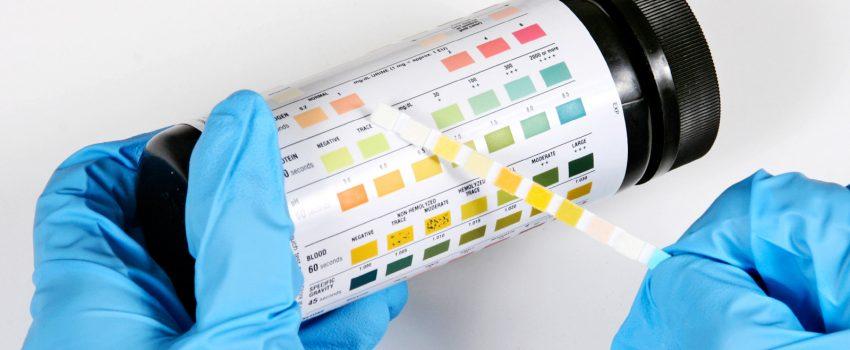 Edigar 2 tiras reactivas tabla de color